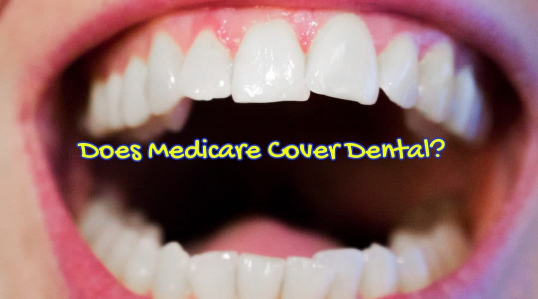 Does Medicare Cover Dental