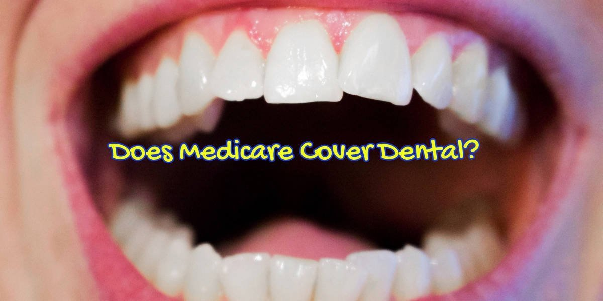 "Photo of a woman's mouth with caption, ""Does Medicare Cover Dental""."